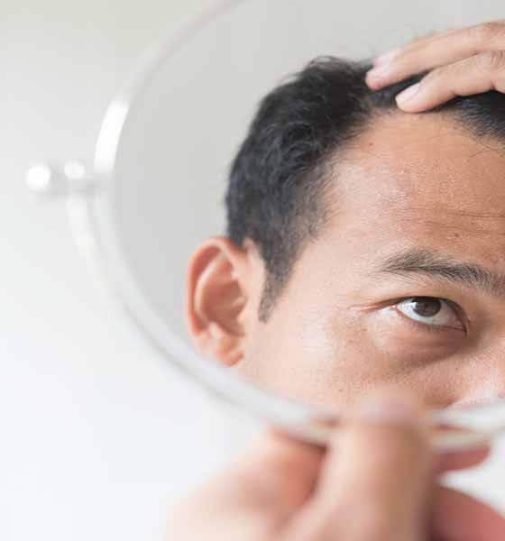 Şok Diyetler Saç Kaybına Neden Olabilir
