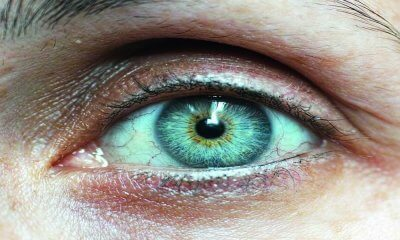 Alzheimer Hastalığı Gözden Teşhis Edilebiliyor