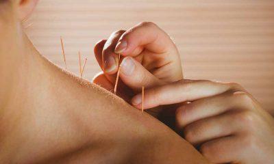 akupunkturun kemoterapiye etkisi